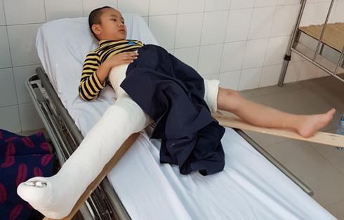 18 giáo viên Trường Tiểu học Nam Trung Yên ở Hà Nội vừa tố cáo Hiệu trưởng thông tin sai lệch về việc học sinh gãy chân trong sân trường (Thời sự trưa 19/2/2017)
