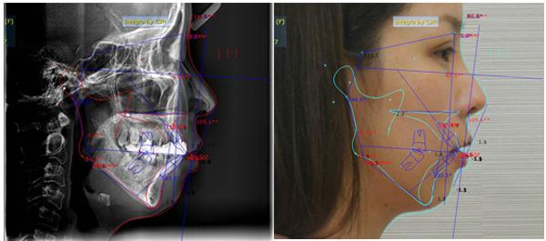 Kỹ thuật mới trong phẫu thuật chỉnh hình xương mặt hàm (18/4/2017)