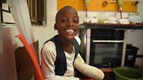 Crystal Chigbu và nỗ lực hỗ trợ chân tay giả cho trẻ em khuyết tật Nigeria (11/11/2019)