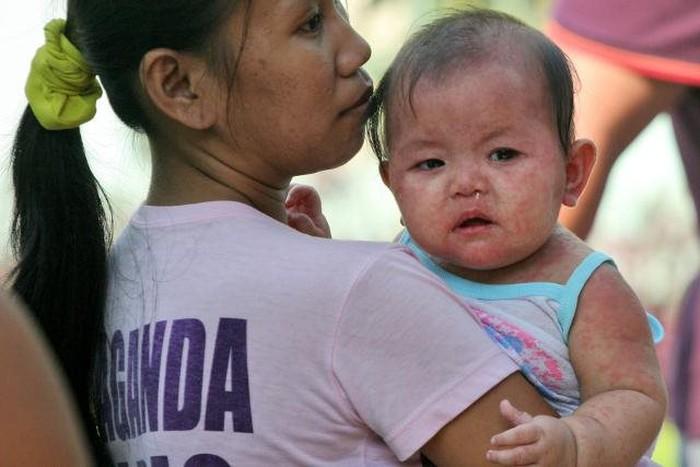 Tẩy chay vắc xin và nguy cơ bùng phát dịch sởi (15/2/2019)