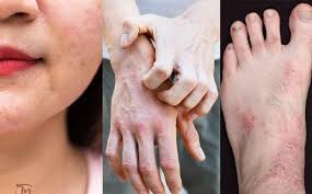 Bệnh viêm da dị ứng vào mùa hè: Nguyên nhân và hướng điều trị (22/6/2019)