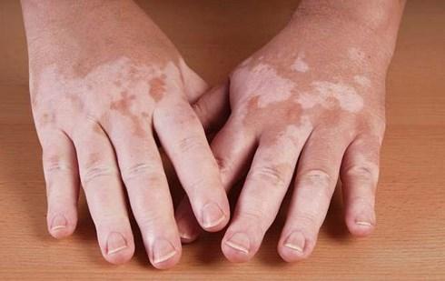 Hiệu quả của phương pháp điều trị bệnh bạch biến bằng thảo dược thiên nhiên (6/7/2019)