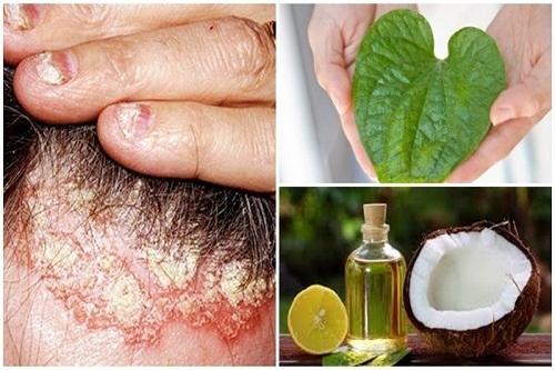 Phương pháp mới điều trị bệnh á sừng bằng thảo dược thiên nhiên (14/9/2019)