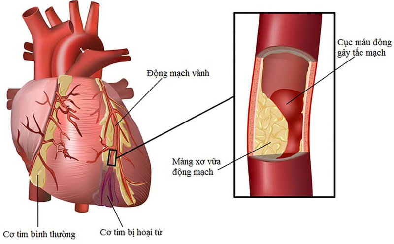 Tư vấn cách chăm sóc sức khỏe để phòng ngừa bệnh tim mạch (9/3/2020)