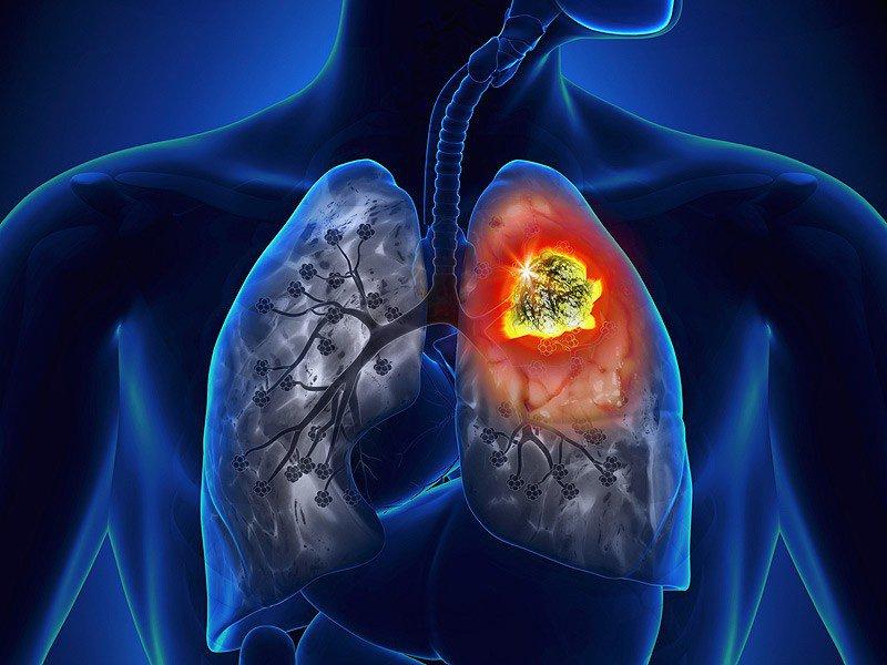 Phòng ngừa và điều trị ung thư phổi (28/3/2020)