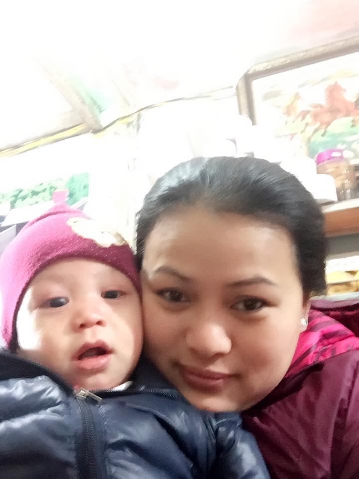 Chị Trần Phương Lan, người khởi xướng thành lập CLB chăm sóc trẻ bị ly thượng bì bọng nước ở nước ta (2/6/2020)