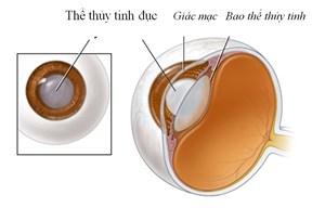 Cách phòng tránh bệnh đục thủy tinh thể do lạm dụng thuốc chống viêm (21/01/2021)