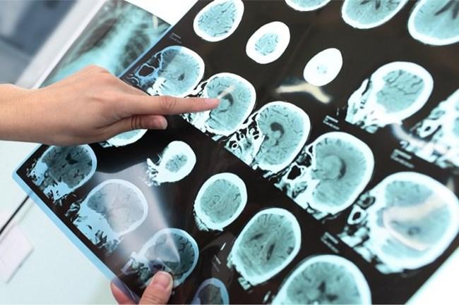 Thuốc Adhema của Mỹ mở ra kỷ nguyên mới cho chữa trị bệnh Alzheimer (08/06/2021)